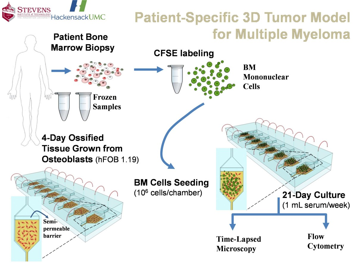 The patient-specific 3D tumor model for multiple myeloma