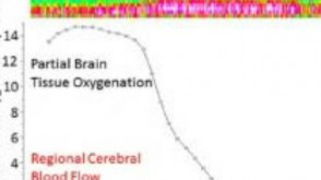 brain-tissue oxygenation graph