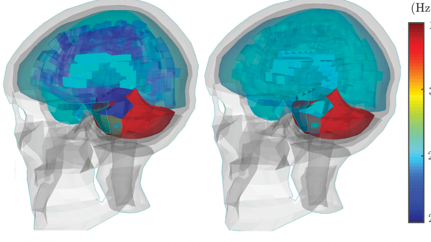Differences in brain dynamics in injured vs. non-injured athletes. The left side shows the injury; the right side shows a non-injury. CREDIT: KurtLab