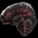 Three slices of the brain with red arrows within them. Each red arrow is a different length and width, corresponding to the direction and amplitude of the brain moving in three dimensions.