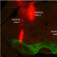 A technique called immunohistochemistry is used to visualize protein expression in the brain following deep brain stimulation. Green indicates dopamine-containing nerve cells and red indicates deep brain stimulation electrode tracks